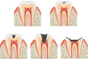 虫歯の進行ステージ