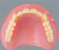 入れ歯の種類とは?